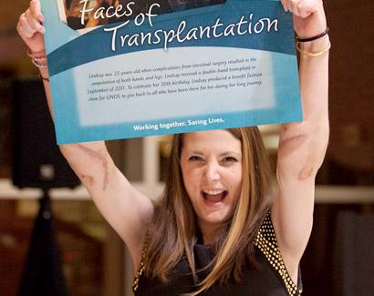 Lindsay Ess Hand Transplant