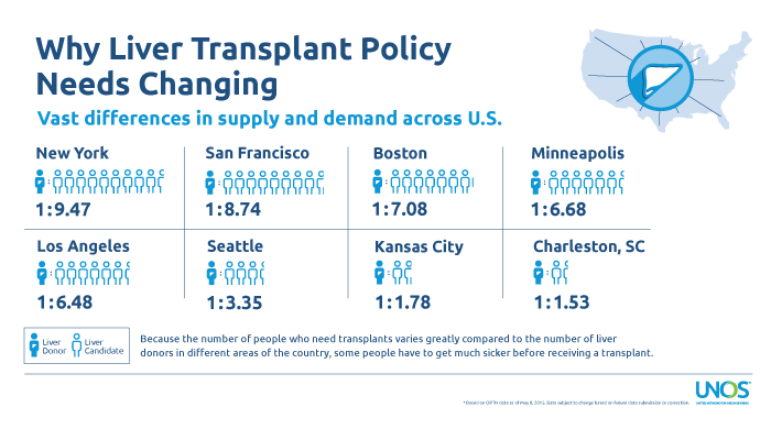 why liver transplant policy needs to change